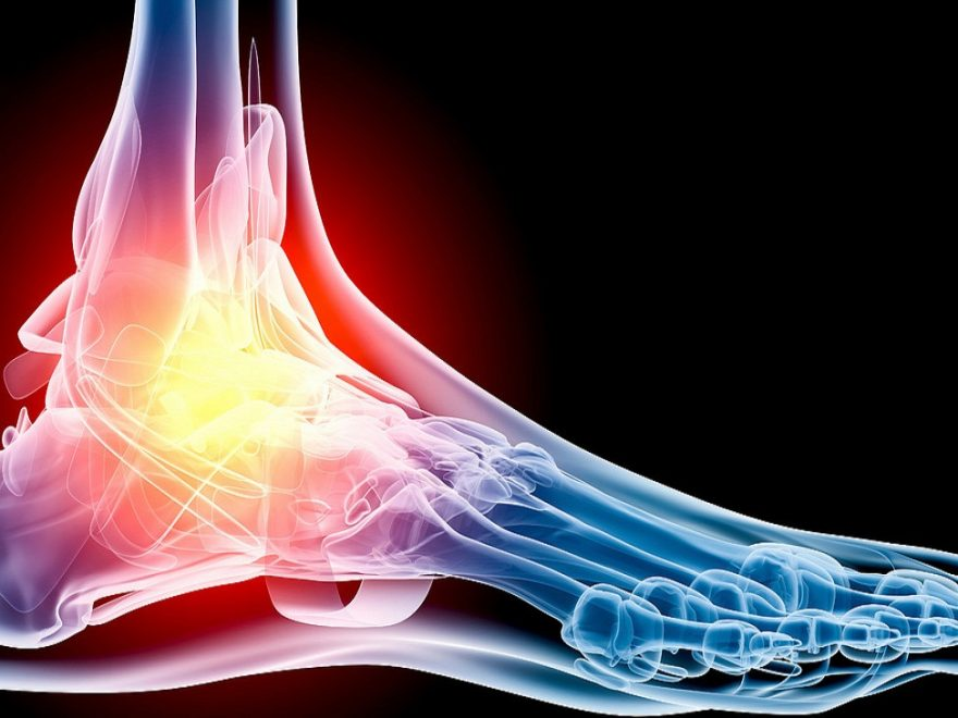 How Can I Stop Foot Pain?